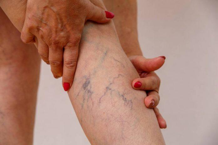 Como eliminar varizes e vasinhos das pernas