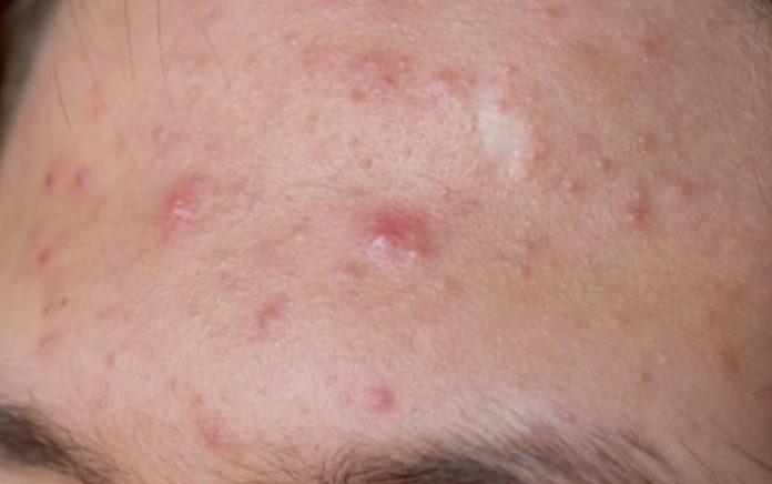 Como acabar com as espinhas acne