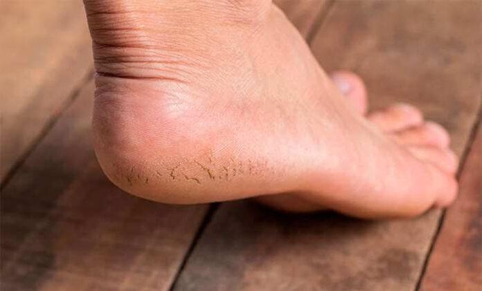 Tratamentos naturais para rachadura no calcanhar